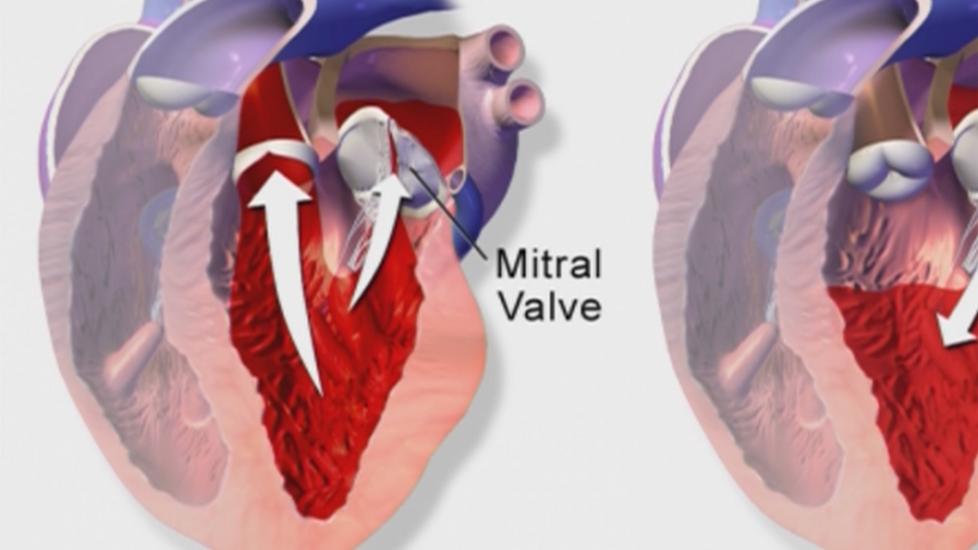 a description of cause and effect of heart defect called mitral valve prolapse Direction and doesn't back up or cause leakage heart valve disorders  with a heart valve disorder may  a mitral valve prolapse is also called.